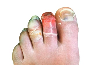Human_toes,_12_days_post-frostbite